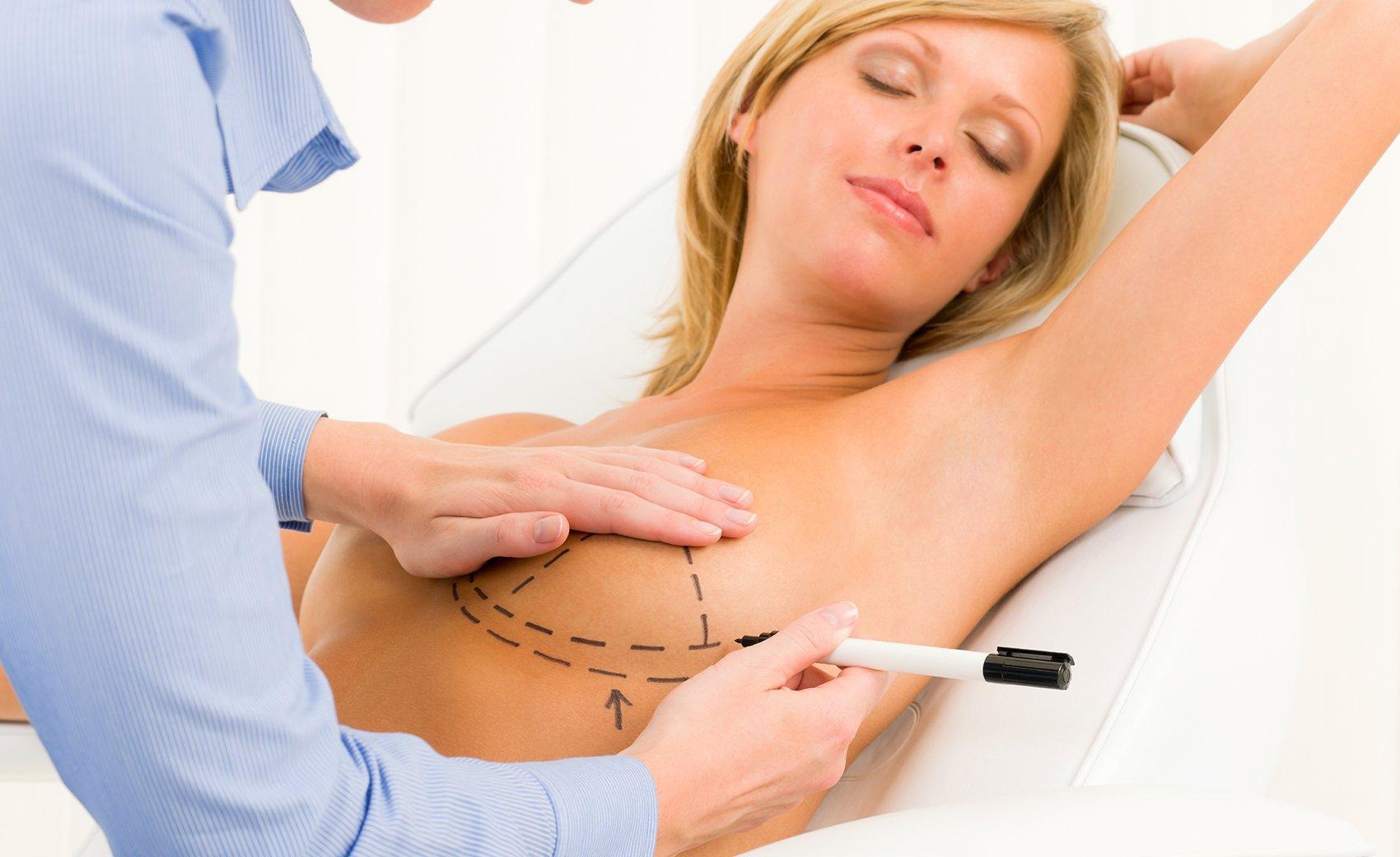 Breast Augmentation Cancun