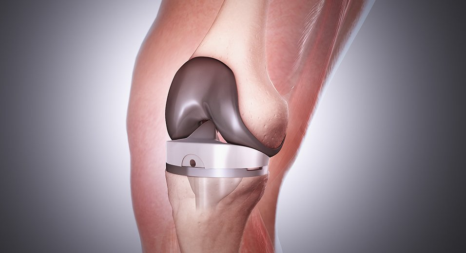Knee Replacement Surgery in Cancun